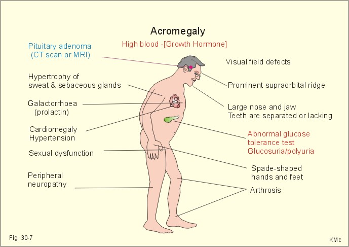 a study of acromegaly disease